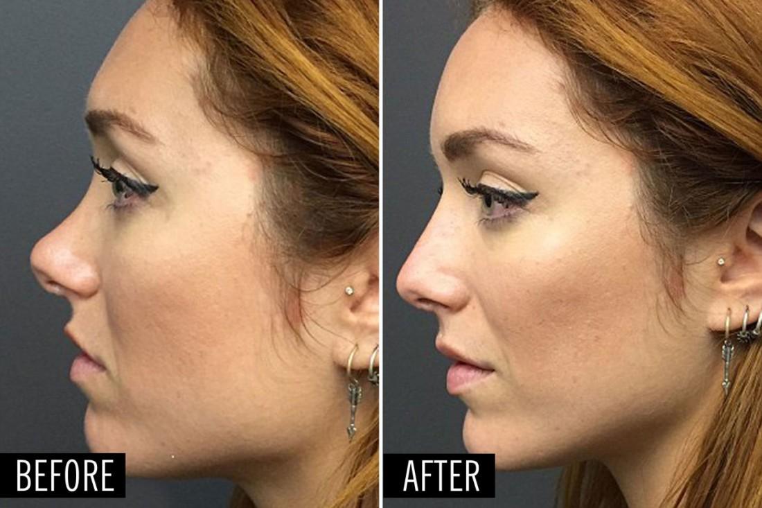 Совет 1: Как уменьшить кончик носа 70